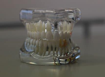 Chirurgien dentiste : tout savoir sur le rôle de votre prothésiste dentaire