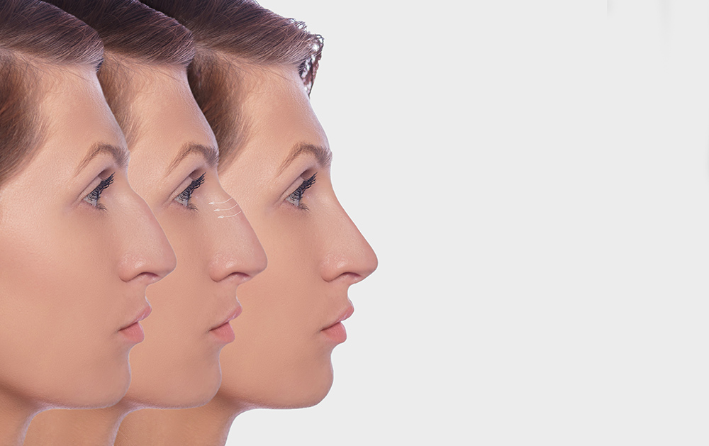 Tout savoir sur la chirurgie du nez