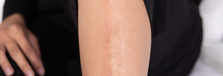 Pourquoi ma cicatrice me fait mal?