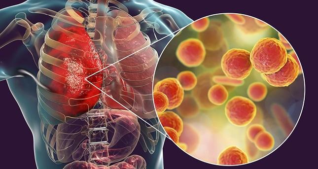 Comment guérir une infection pulmonaire naturellement?