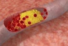 Quelles plantes homéopathiques pour abaisser le cholestérol?