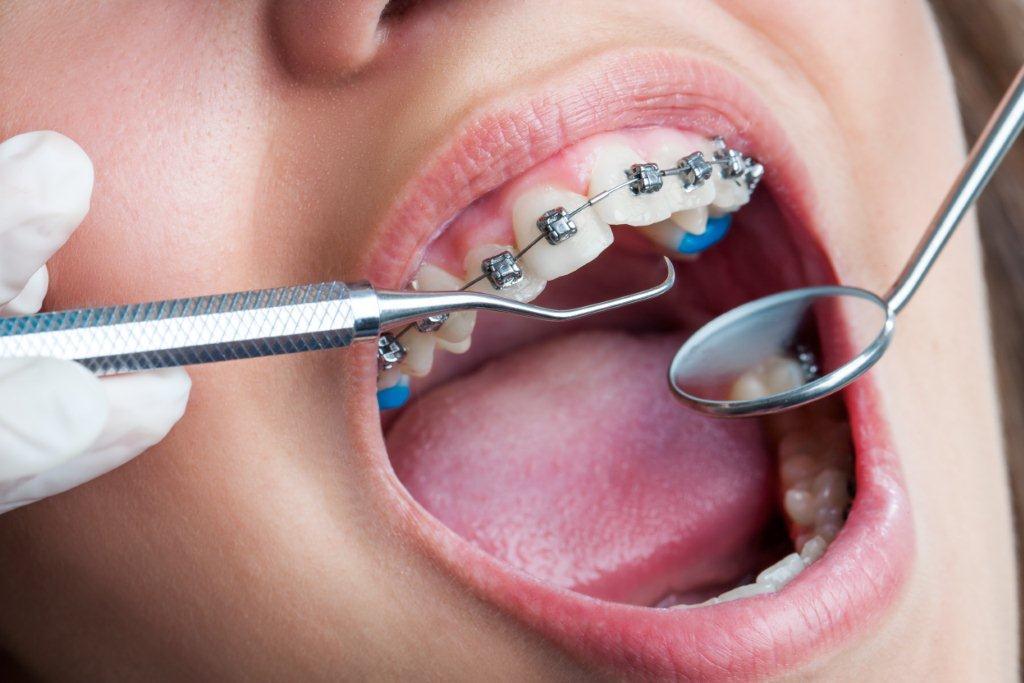 Trouver votre orthodontiste proche de la Suisse